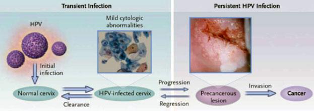 HPV-02